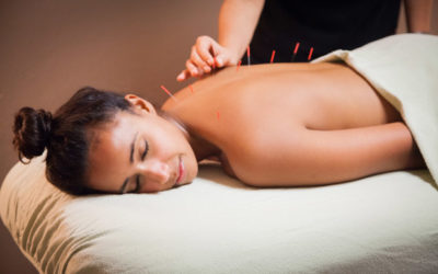 Acupuncture, What Is It Good For? Absolutely Everything!